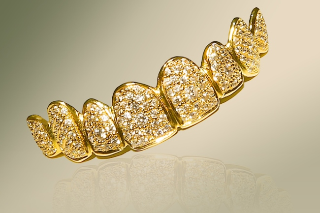 WTFSG_dental-jewelry-gold-and-diamond-dentures_1