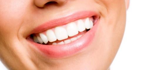 WTFSG_Bright-White-Smile